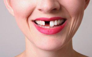 remplacer les dents manquants